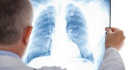 New lung transplant technique could save lives
